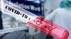 За сутки в РФ зафиксирован 771 случай коронавируса, ...