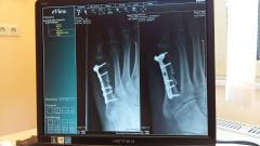 Семь комплексов рентгендиагностики будет куплено для больниц Ленобласти