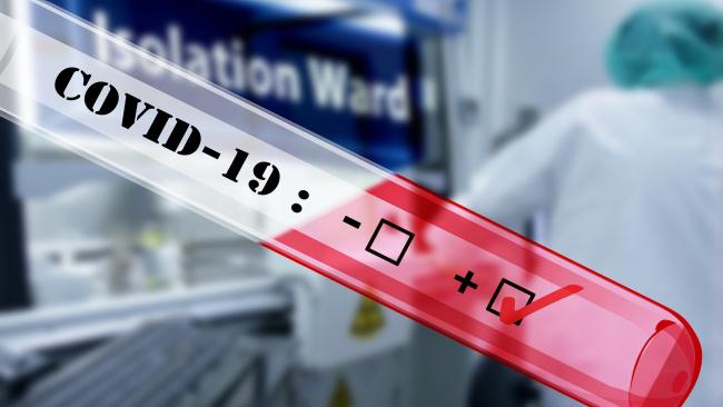 За сутки в РФ зафиксирован 771 случай коронавируса, днем ранее показатель был ниже (440)