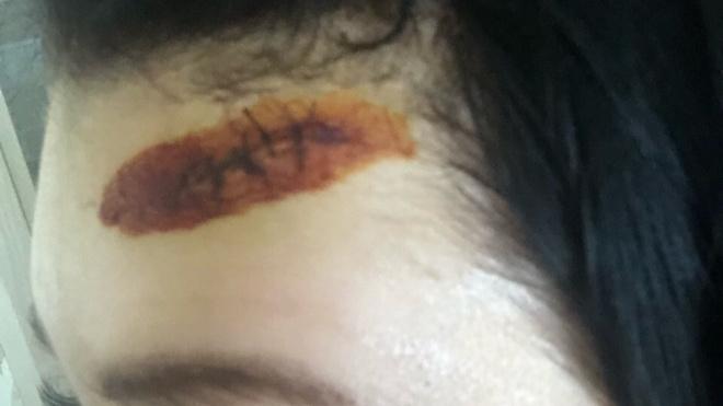 На петербурженку напали с ножом в детском саду: ей нанесли 8 ударов ножом