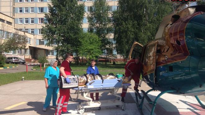 Тихвинца доставили на вертолете в больницу с серьезным ожогом