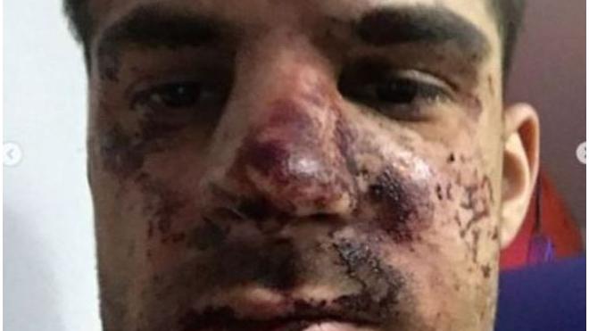 """Футболист """"Зенита"""" рассказал подробности своего избиения"""