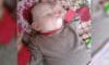 На лечение шестимесячной девочки с самым большим родимым пятном на теле уйдут годы