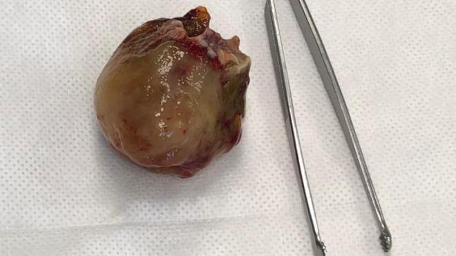 """В """"Елизаветинской больнице"""" провели операцию по удалению доброкачественной опухоли на открытом сердце"""