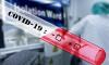 В Удмуртии зафиксировали 4 новых случаев заболевания коронавирусной инфекцией
