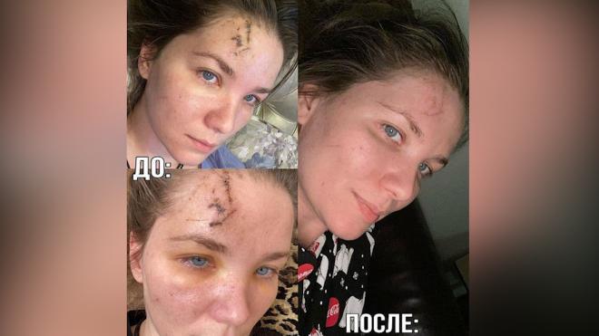 Актриса Анастасия Веденская показала, как выглядят её шрамы после драки в кафе в Петербурге