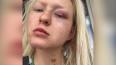 Певица Тося Чайкина показала следы избиения Ассаи