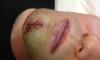 После травмы Александру Овечкину наложили 22 шва на лицо