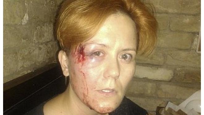 Тяжелый день: лидера FEMEN несколько раз избили и ограбили