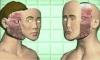 Впервые в мире проведена оперативная пересадка лица