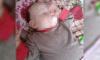 В Петербурге прооперируют девочку с огромным родимым пятном