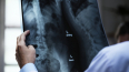 На Ленсовета иномарка сбила пенсионера, нарушавшего ПДД