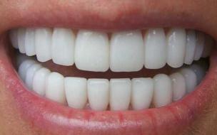 Китайские ученые смогли вырастить зубы из мочи