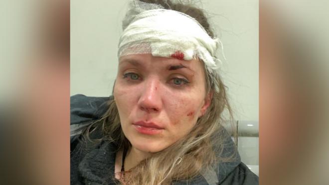 Актриса Анастасия Веденская раскрыла подробности конфликта в Петербурге