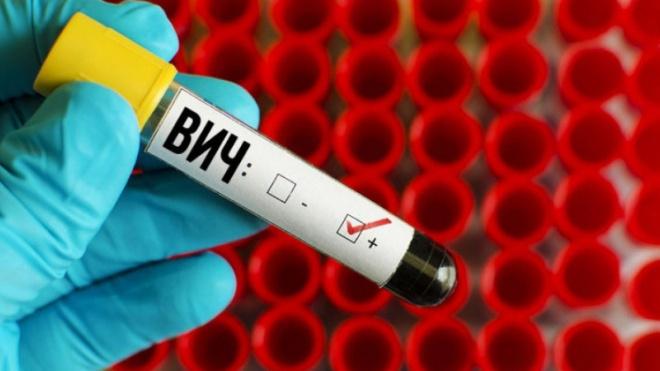 Петербургские студенты 29 ноября смогут пройти бесплатное тестирование на ВИЧ