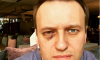 Навальный показал фото кровавого глаза после операции в Испании