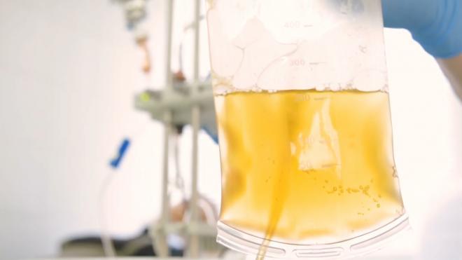 Ежеденельно в  Городскую станцию переливания крови обращаются 200 доноров антиковидной плазмы
