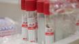 На Кубани выявили еще 84 новых случаев коронавируса