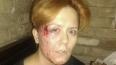Тяжелый день: лидера FEMEN несколько раз избили и ...