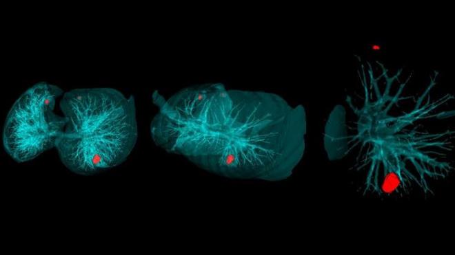 Петербургские ученыеразработали интеллектуальнуюсистемудиагностики опухолей влегких