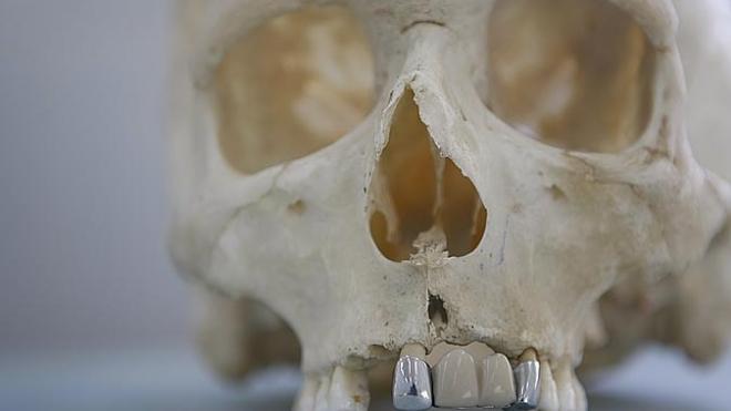 Петербуржец обнаружил человеческий скелет в собственной квартире