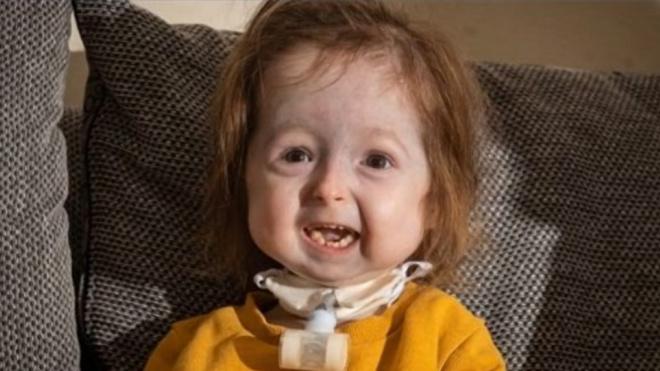 """В Британии у 2-летней девочки обнаружили редкую болезнь """"Бенджамина Баттона"""""""
