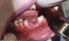В США 17-летнему парню вейпом раскурочило челюсть