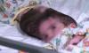 Британским медикам удалось разделить сиамских близнецов сросшихся головами