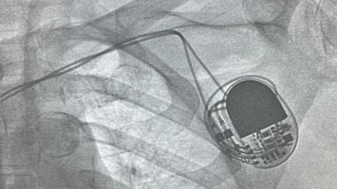 """В """"Елизаветинской больнице"""" впервые установили электрокардиостимулятор"""