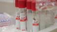 В Ленобласти зафиксировано 52 случая коронавируса