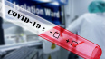 На Кубани подтвердили коронавирус у 24 человек