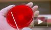 Число инфицированных ВИЧ в России превысило 1 млн человек