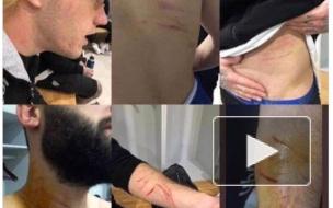 Турция: Футболист пронес на поле лезвие и порезал соперников