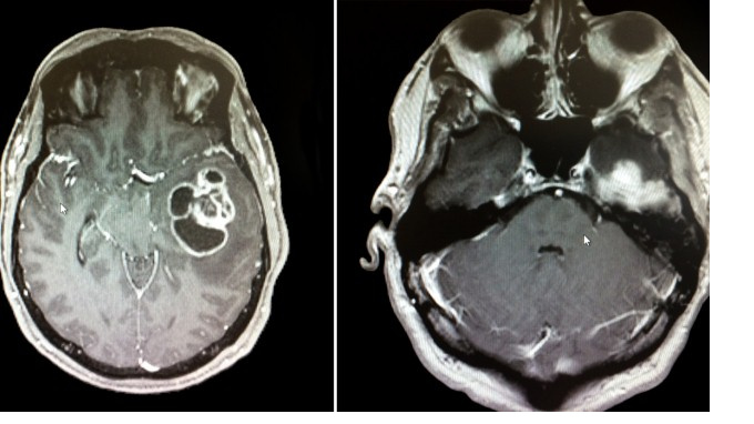 Онкология: что это такое, первые признаки, как диагностировать рак на ранней стадии, лечение онкологических заболеваний