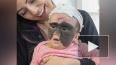 Мама девочки с родимым пятном на все лицо показала ...