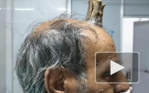В Индии у мужчины на голове вырос десятисантиметровый рог
