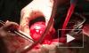 """Двое россиян пострадали от """"черных трансплантологов"""" в Косово"""