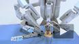 Робот Da Vinci спасает жизни петербуржцев