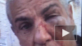 Сами Насери после избиения в центре Москвы прооперировали ...